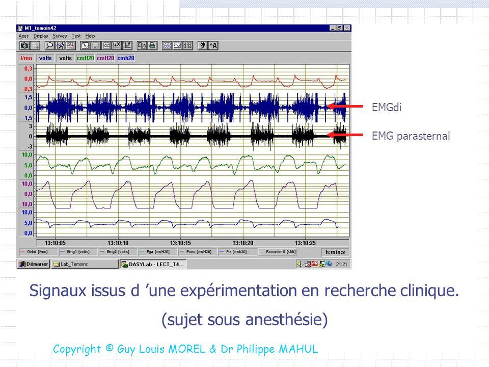 Signaux issus d 'une expérimentation en recherche clinique.