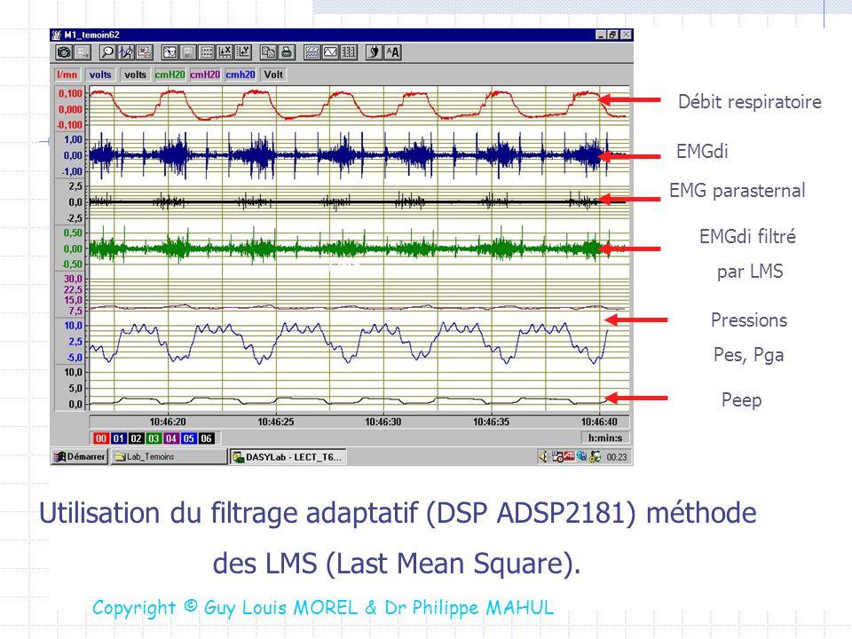Utilisation du filtrage adaptatif (DSP ADSP2181) méthode