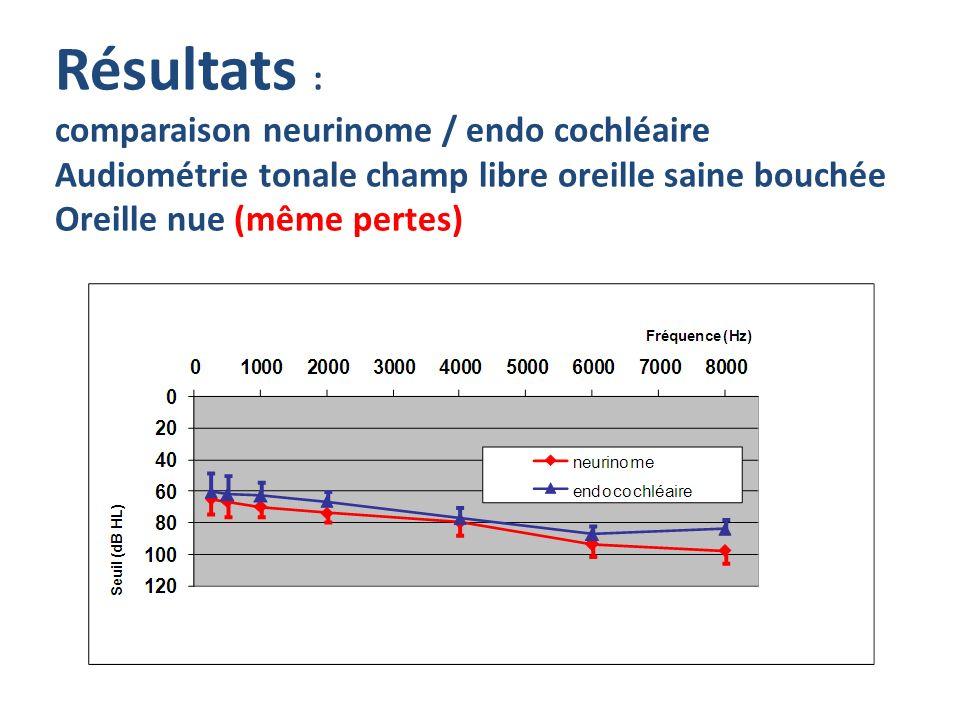 Résultats : comparaison neurinome / endo cochléaire Audiométrie tonale champ libre oreille saine bouchée Oreille nue (même pertes)