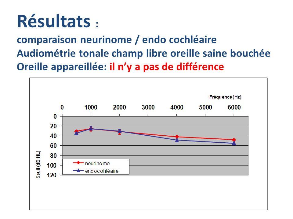 Résultats : comparaison neurinome / endo cochléaire Audiométrie tonale champ libre oreille saine bouchée Oreille appareillée: il n'y a pas de différence