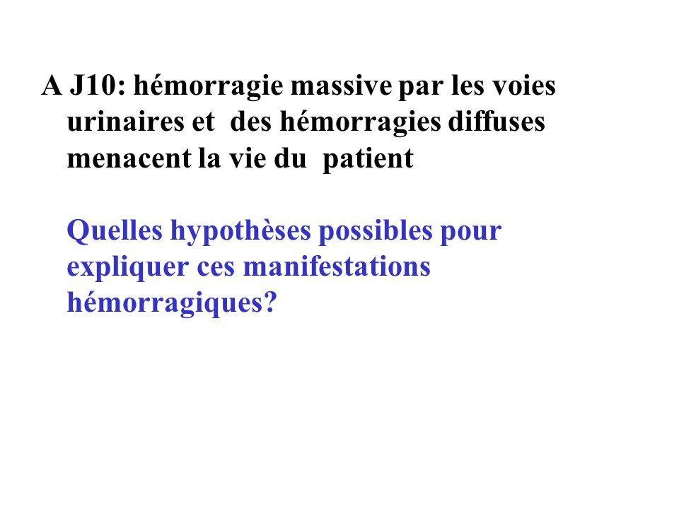 A J10: hémorragie massive par les voies urinaires et des hémorragies diffuses menacent la vie du patient Quelles hypothèses possibles pour expliquer ces manifestations hémorragiques