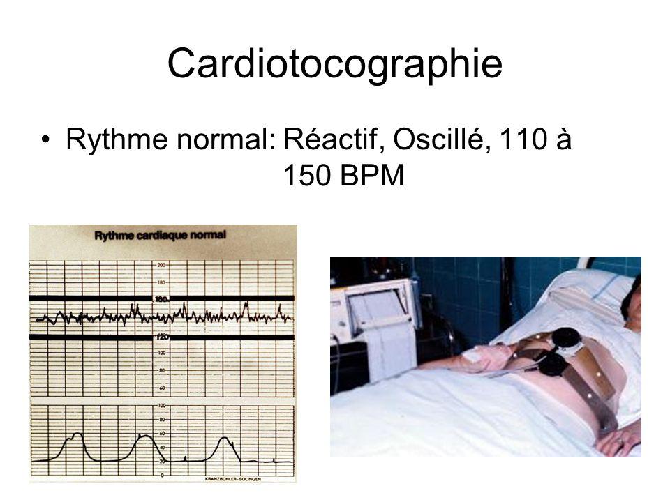 Cardiotocographie Rythme normal: Réactif, Oscillé, 110 à 150 BPM