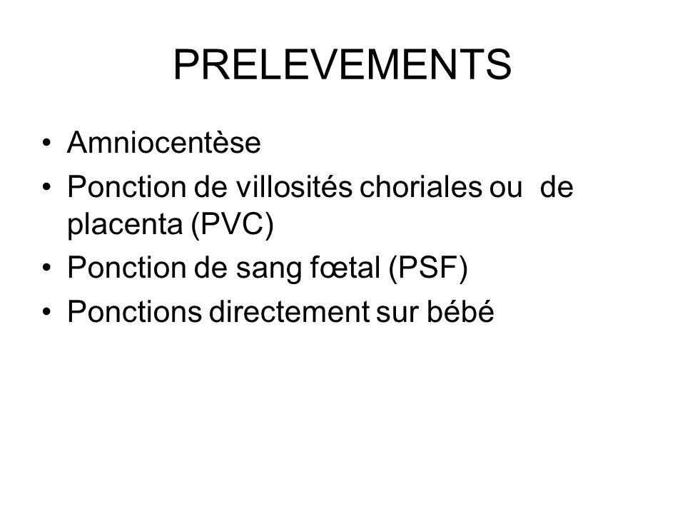 PRELEVEMENTS Amniocentèse