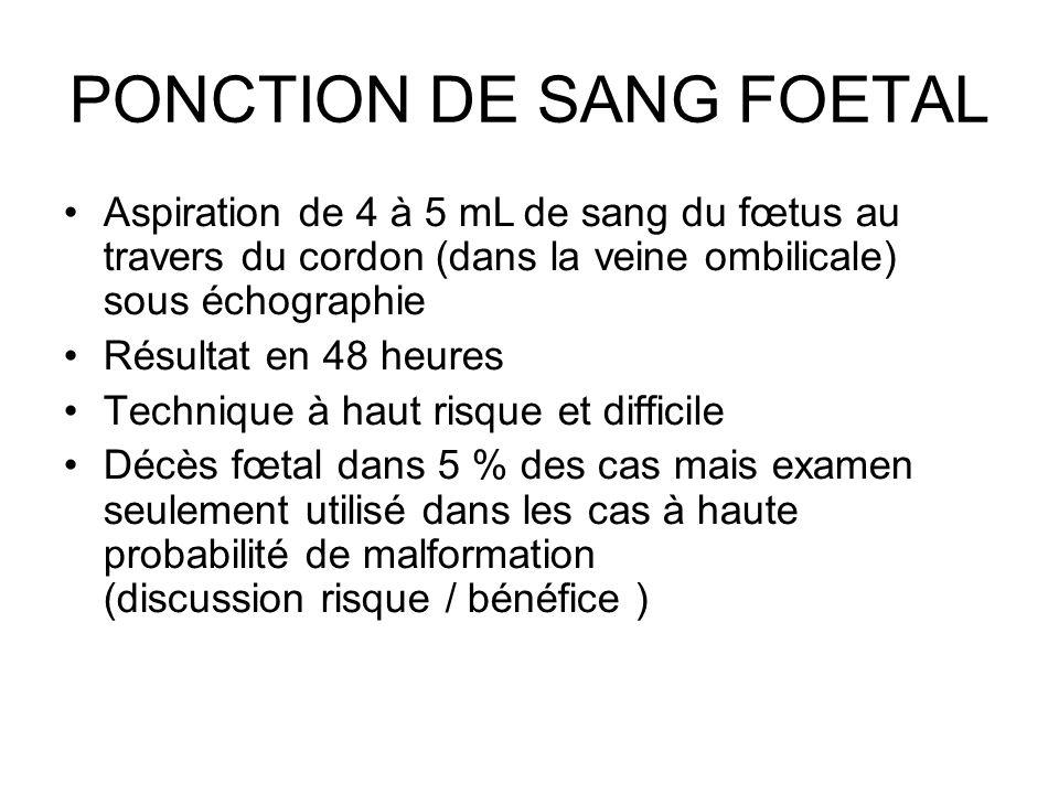 PONCTION DE SANG FOETAL