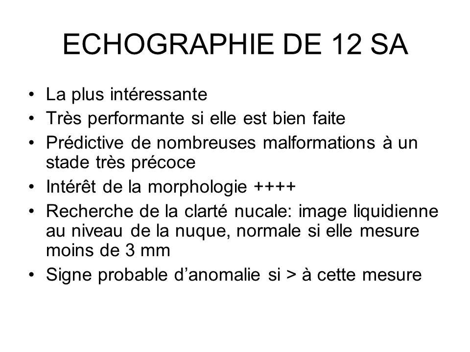 ECHOGRAPHIE DE 12 SA La plus intéressante