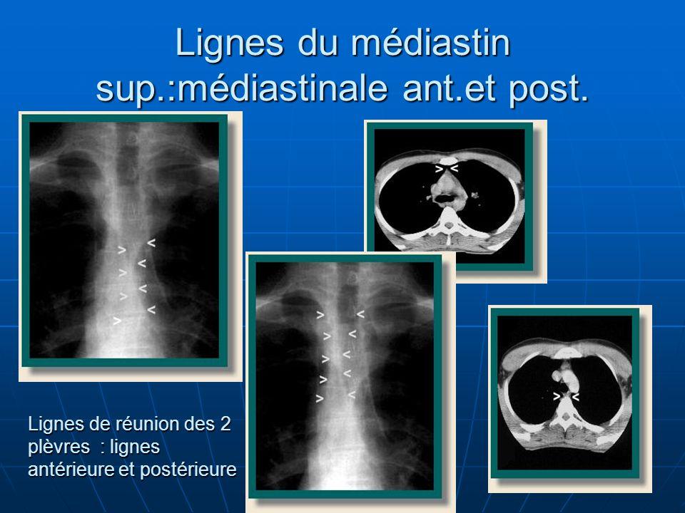 Lignes du médiastin sup.:médiastinale ant.et post.