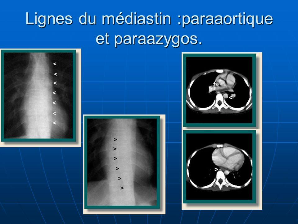 Lignes du médiastin :paraaortique et paraazygos.