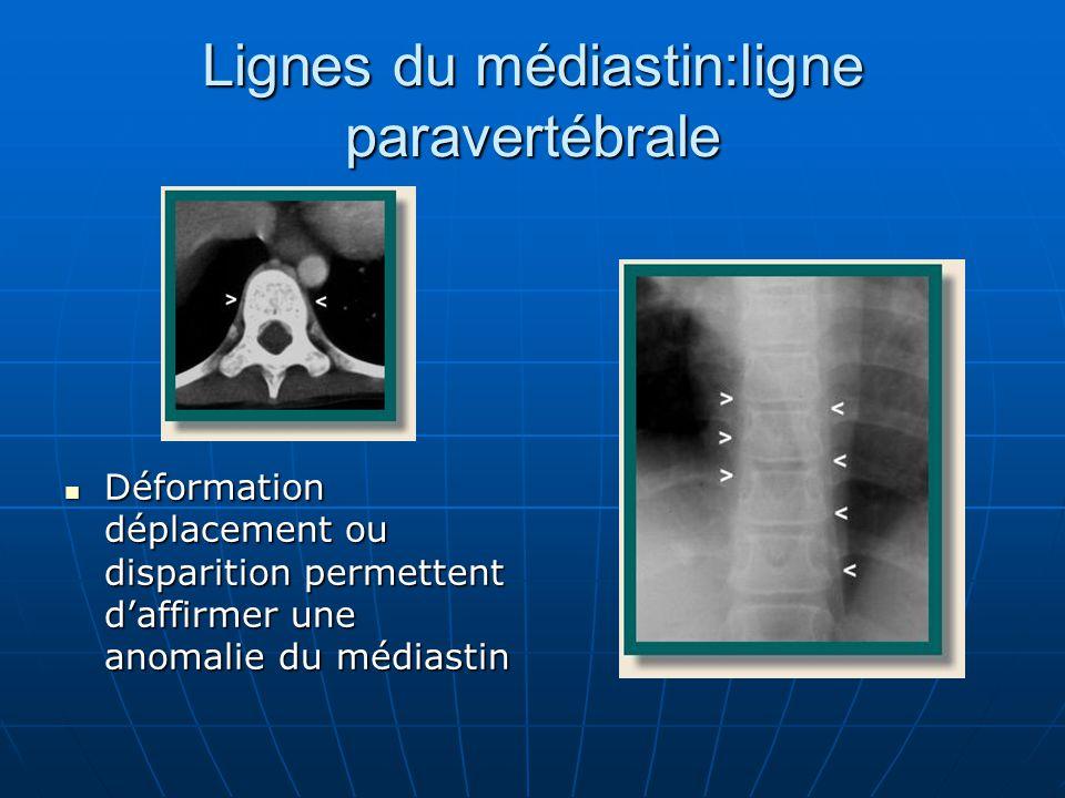 Lignes du médiastin:ligne paravertébrale