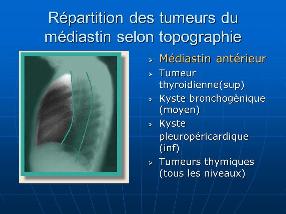 Répartition des tumeurs du médiastin selon topographie