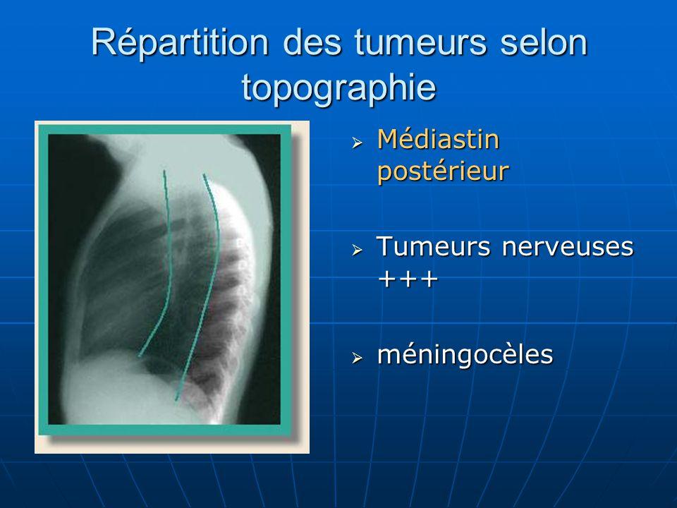 Répartition des tumeurs selon topographie