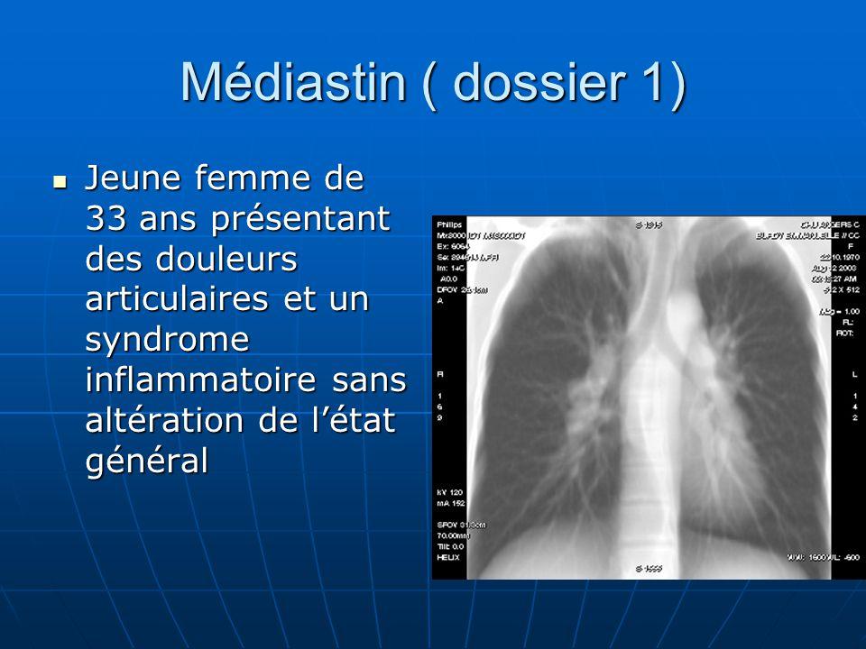 Médiastin ( dossier 1) Jeune femme de 33 ans présentant des douleurs articulaires et un syndrome inflammatoire sans altération de l'état général.