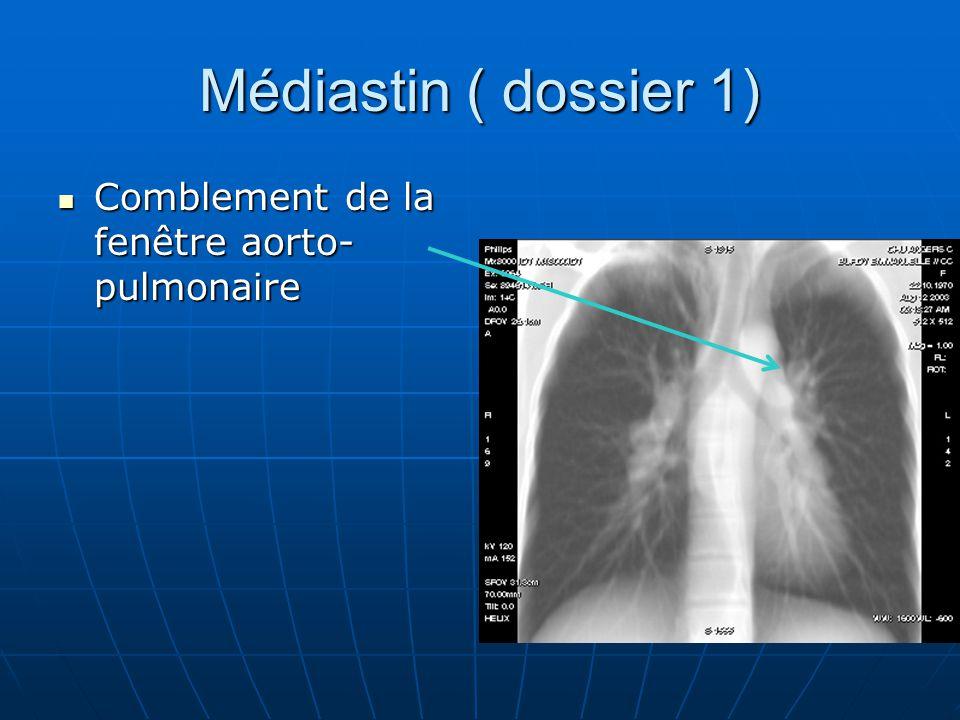 Médiastin ( dossier 1) Comblement de la fenêtre aorto- pulmonaire
