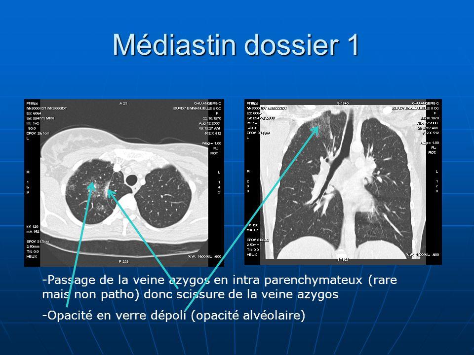 Médiastin dossier 1 Passage de la veine azygos en intra parenchymateux (rare mais non patho) donc scissure de la veine azygos.