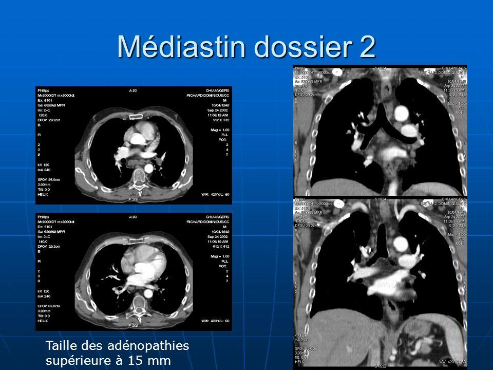 Médiastin dossier 2 Taille des adénopathies supérieure à 15 mm