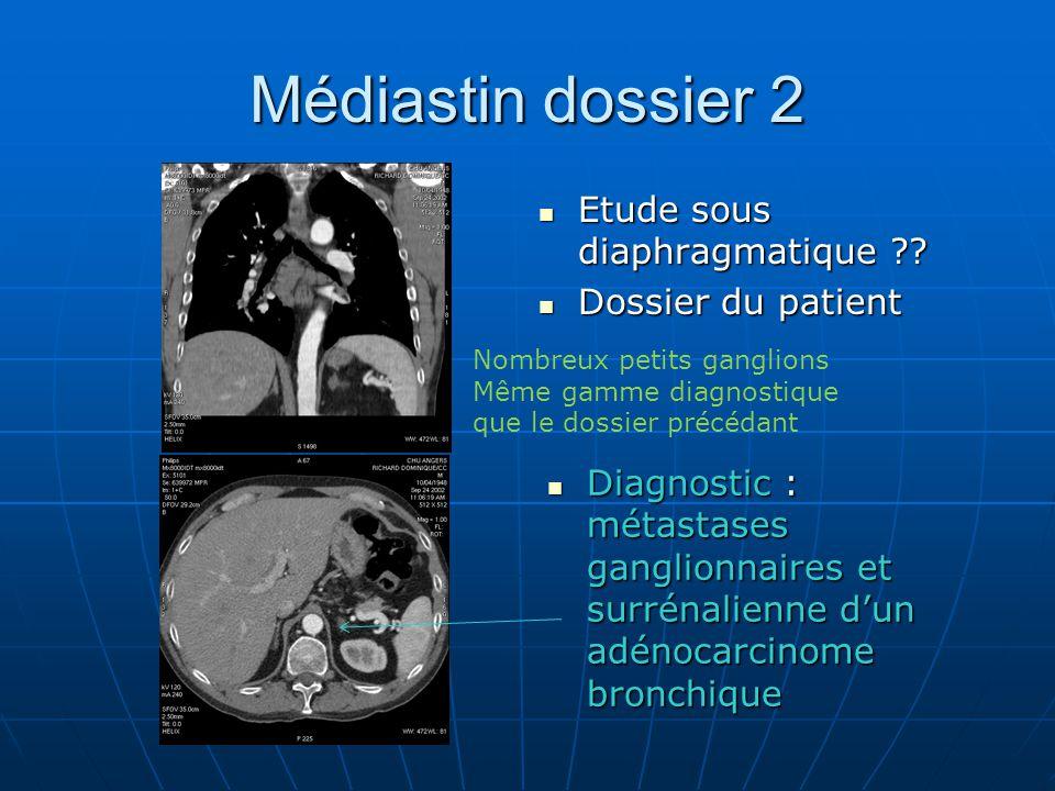 Médiastin dossier 2 Etude sous diaphragmatique Dossier du patient