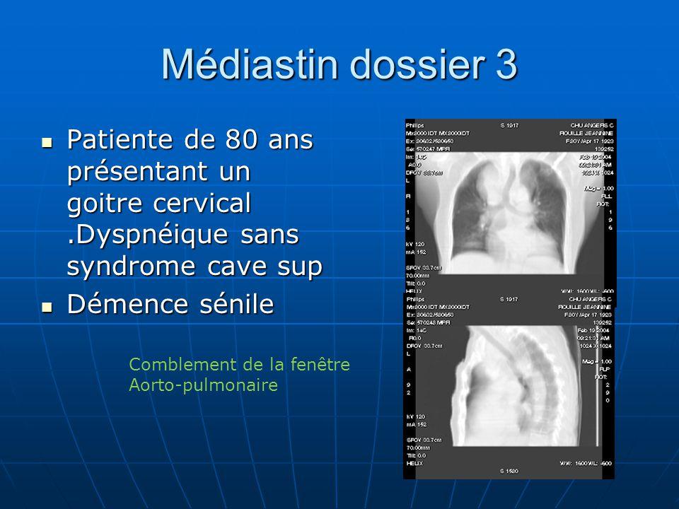 Médiastin dossier 3 Patiente de 80 ans présentant un goitre cervical .Dyspnéique sans syndrome cave sup.