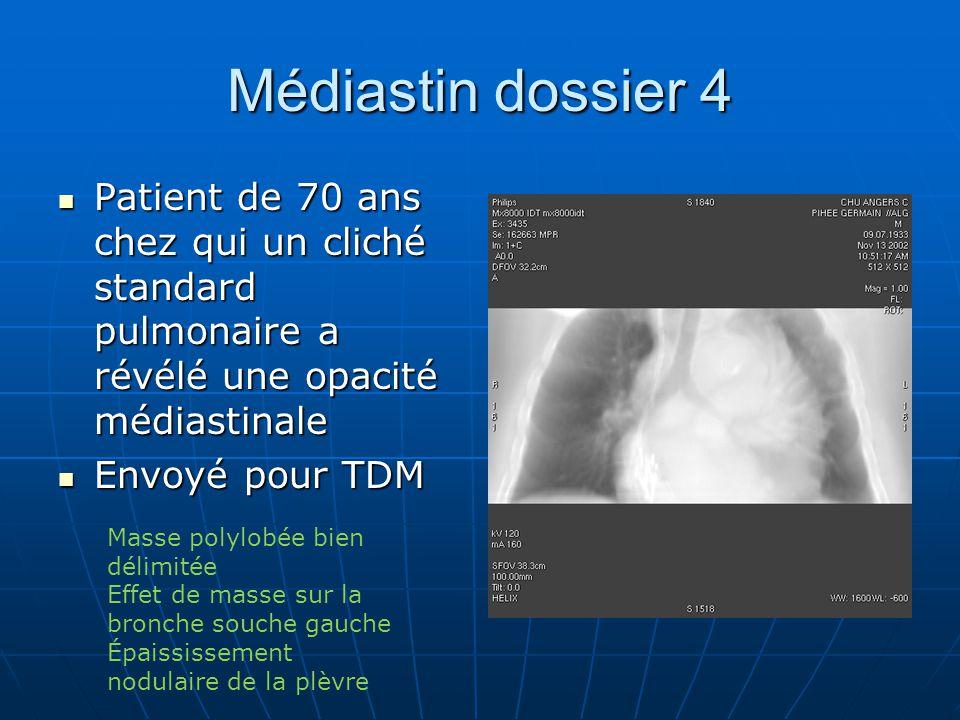 Médiastin dossier 4 Patient de 70 ans chez qui un cliché standard pulmonaire a révélé une opacité médiastinale.