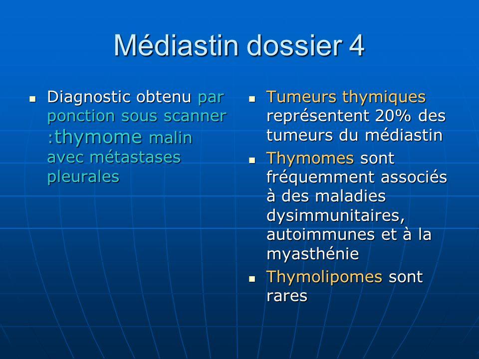 Médiastin dossier 4 Diagnostic obtenu par ponction sous scanner :thymome malin avec métastases pleurales.