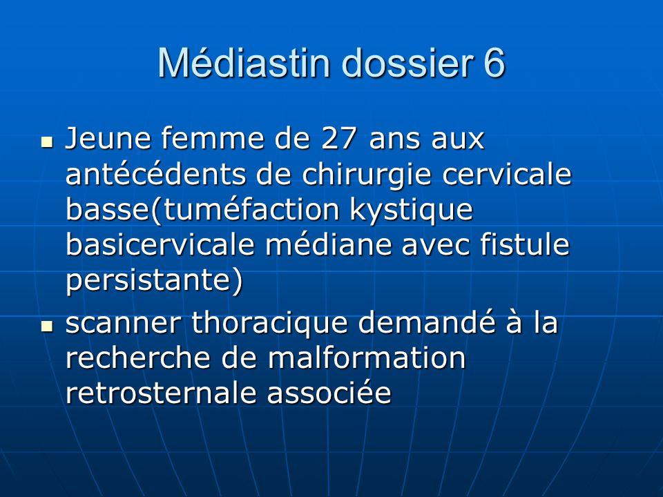 Médiastin dossier 6