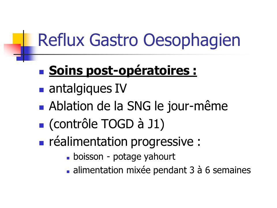 Reflux Gastro Oesophagien
