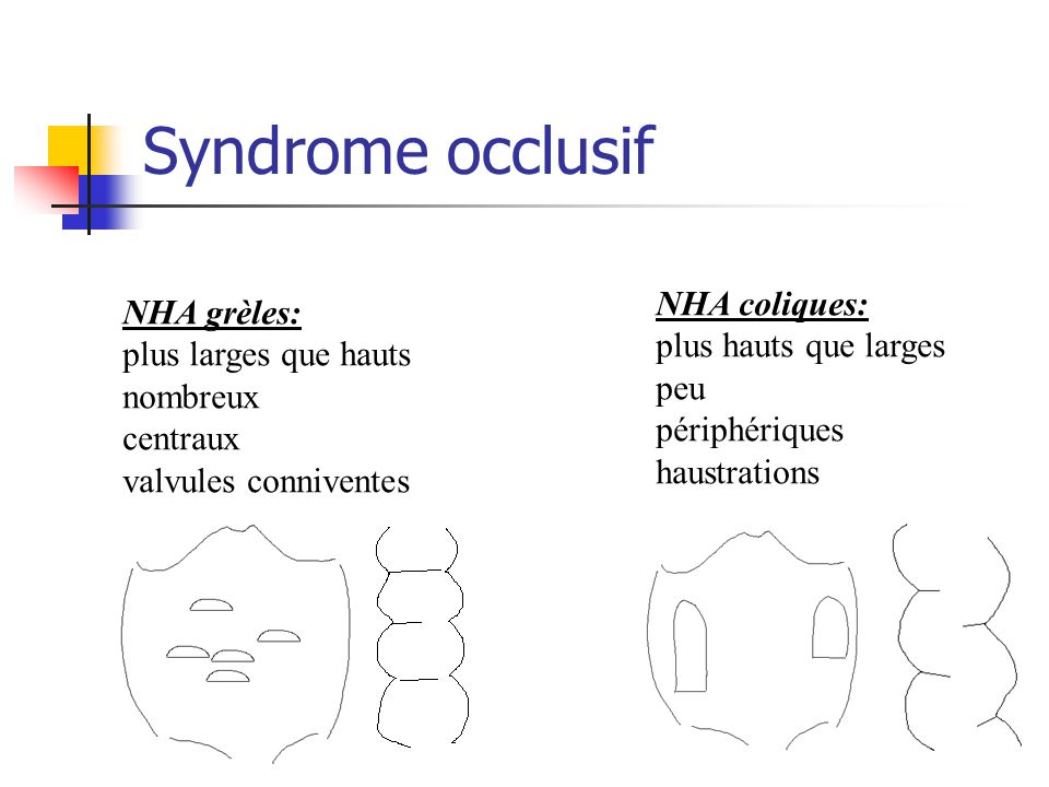 Syndrome occlusif NHA coliques: NHA grèles: plus hauts que larges