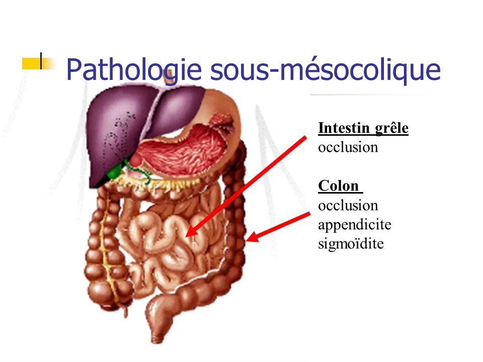 Pathologie sous-mésocolique