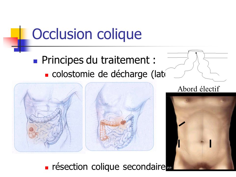 Occlusion colique Principes du traitement :