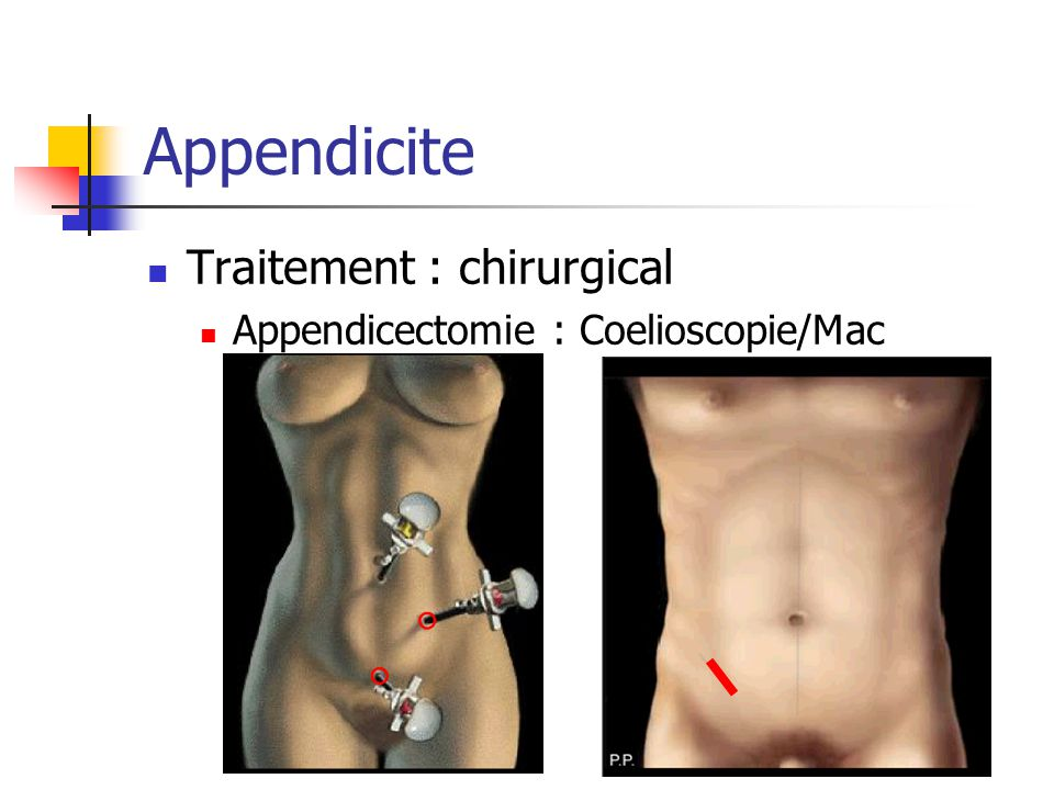 Appendicite Traitement : chirurgical