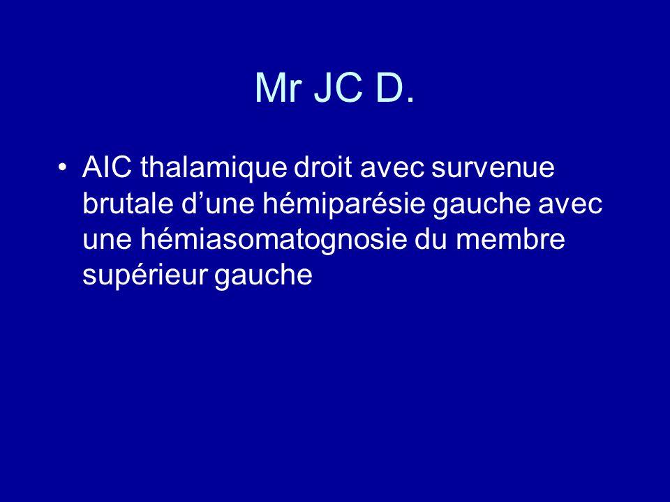 Mr JC D.AIC thalamique droit avec survenue brutale d'une hémiparésie gauche avec une hémiasomatognosie du membre supérieur gauche.