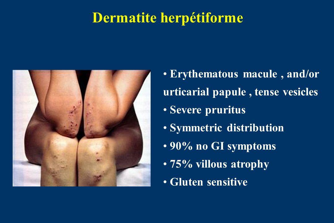 Dermatite herpétiforme