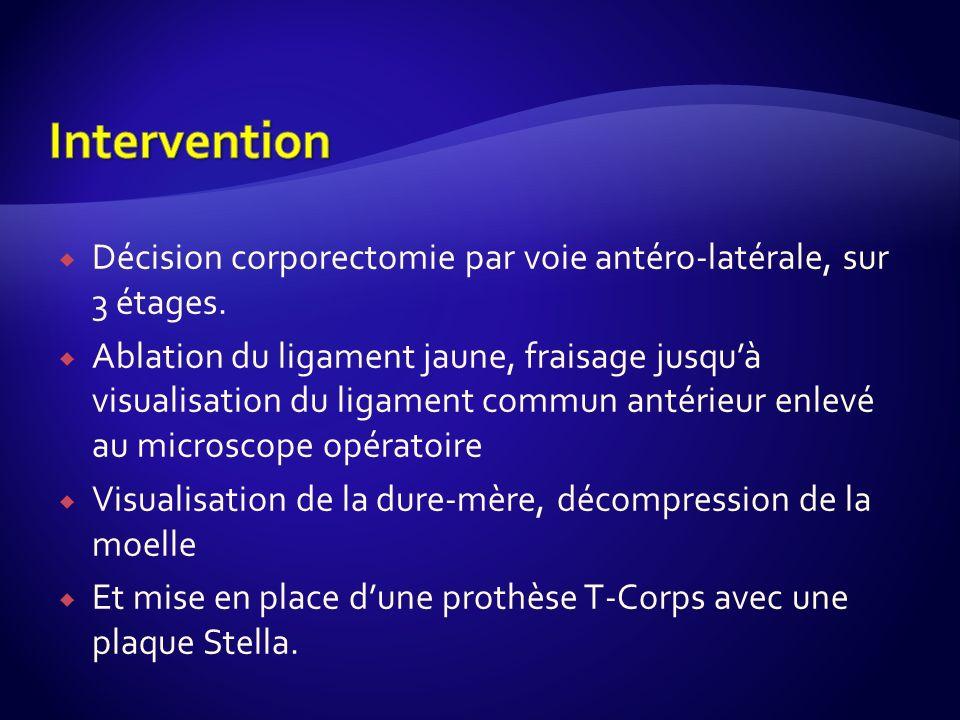 InterventionDécision corporectomie par voie antéro-latérale, sur 3 étages.