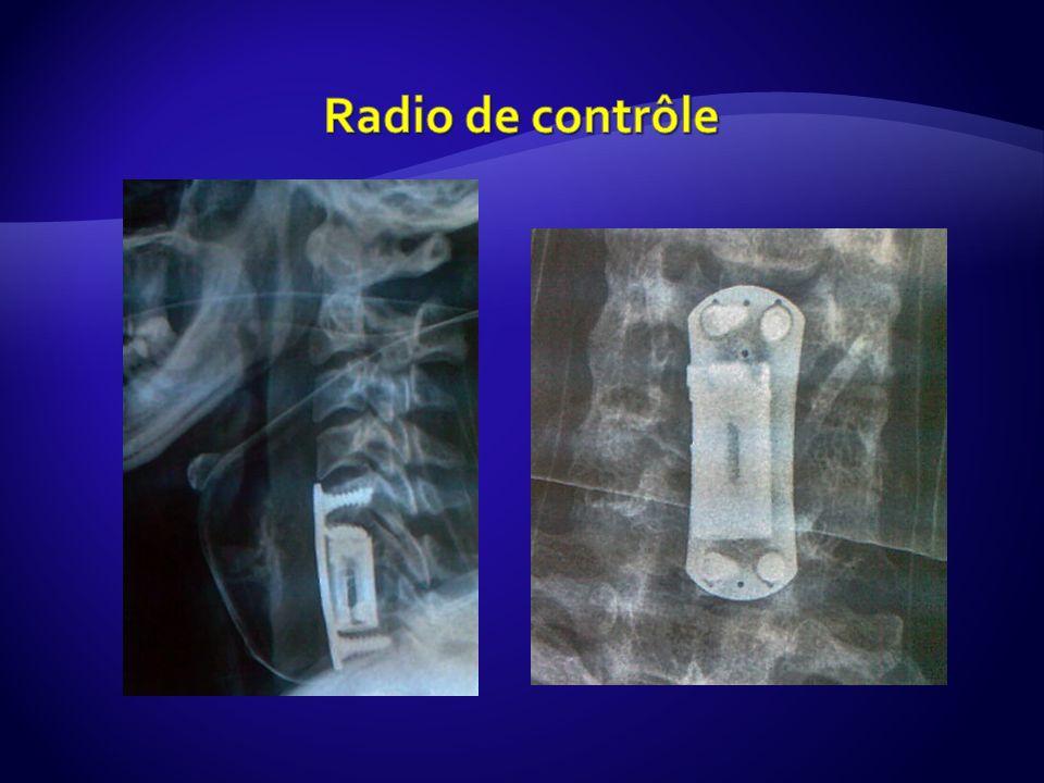 Radio de contrôle
