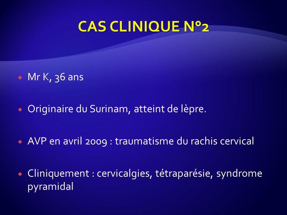 CAS CLINIQUE N°2 Mr K, 36 ans Originaire du Surinam, atteint de lèpre.