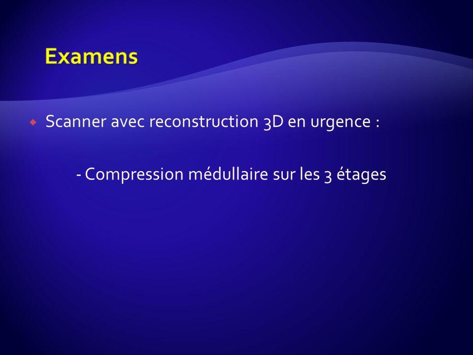 Examens Scanner avec reconstruction 3D en urgence :