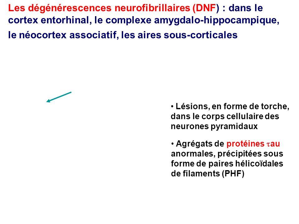 Les dégénérescences neurofibrillaires (DNF) : dans le cortex entorhinal, le complexe amygdalo-hippocampique, le néocortex associatif, les aires sous-corticales
