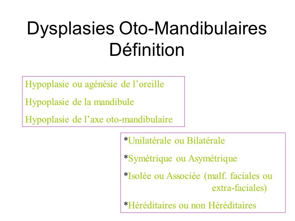 Dysplasies Oto-Mandibulaires Définition