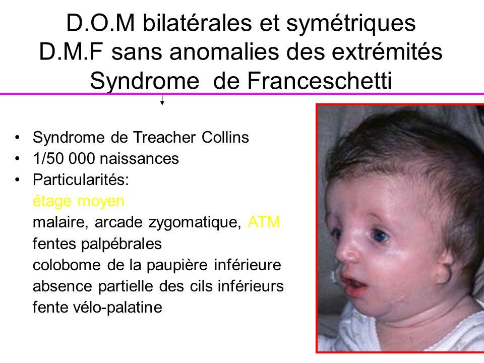 D. O. M bilatérales et symétriques D. M