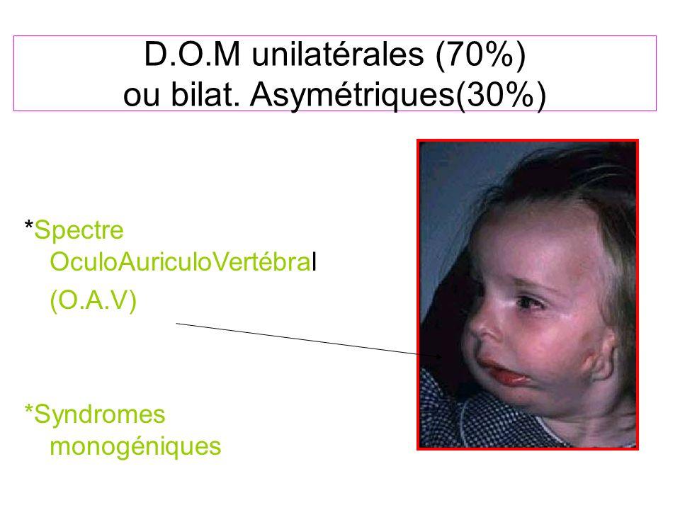 D.O.M unilatérales (70%) ou bilat. Asymétriques(30%)