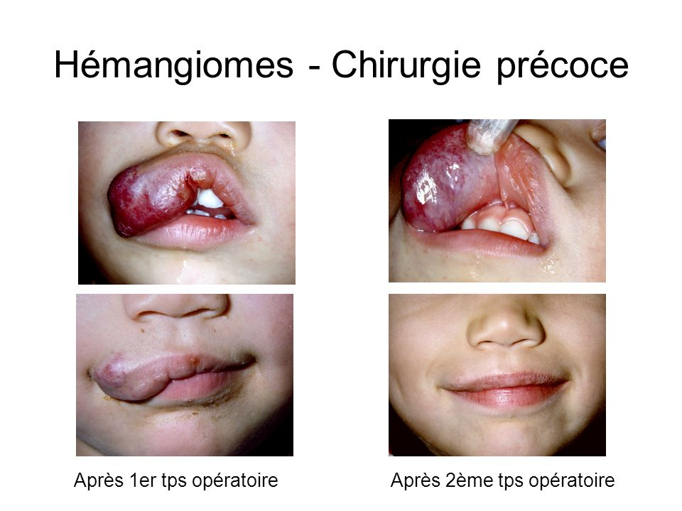Hémangiomes - Chirurgie précoce