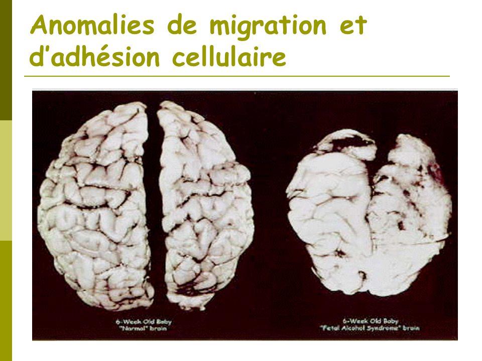 Anomalies de migration et d'adhésion cellulaire