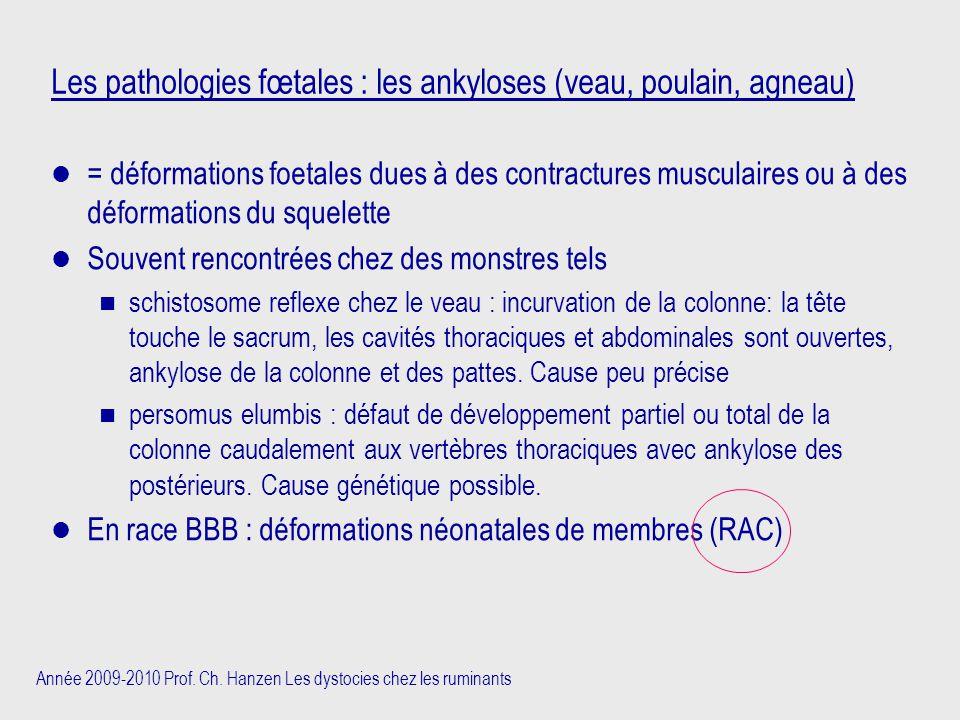 Les pathologies fœtales : les ankyloses (veau, poulain, agneau)