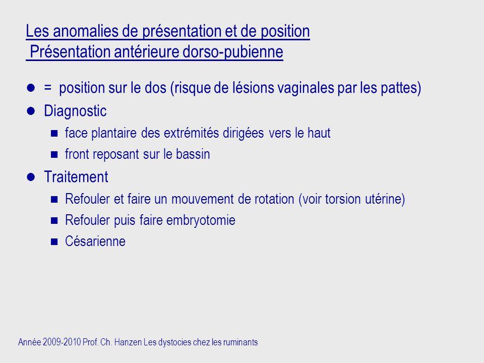 Les anomalies de présentation et de position Présentation antérieure dorso-pubienne