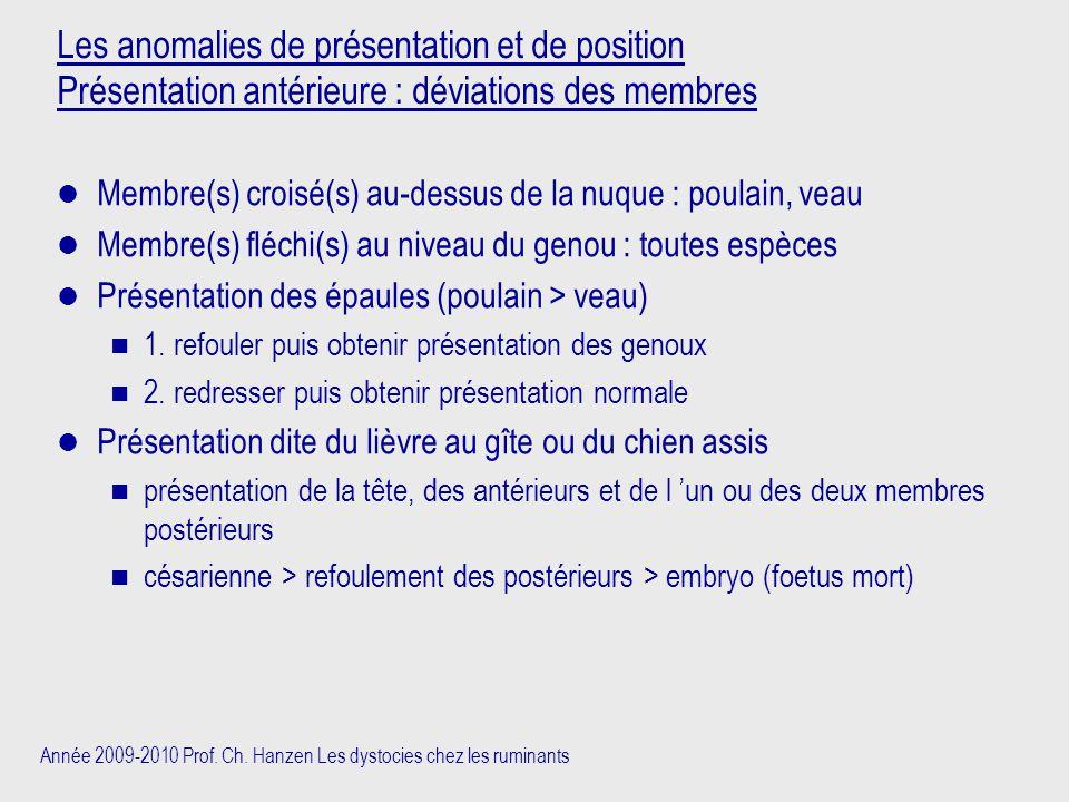 Les anomalies de présentation et de position Présentation antérieure : déviations des membres