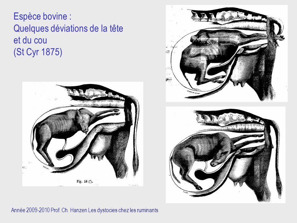 Quelques déviations de la tête et du cou (St Cyr 1875)
