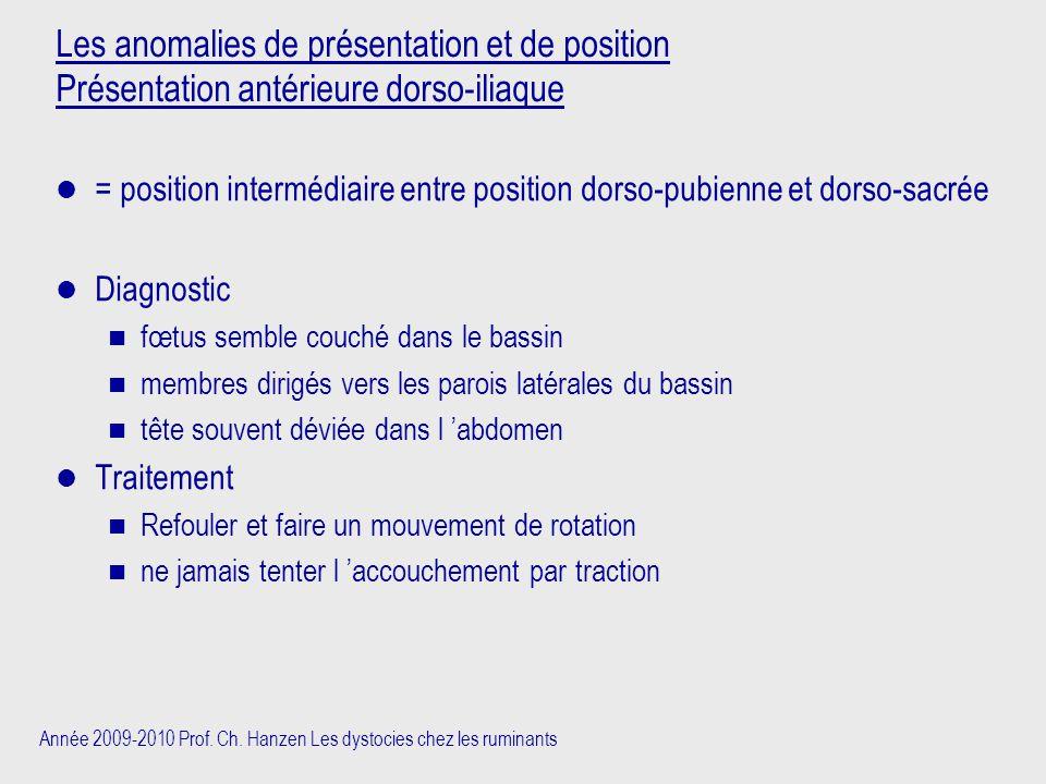 Les anomalies de présentation et de position Présentation antérieure dorso-iliaque