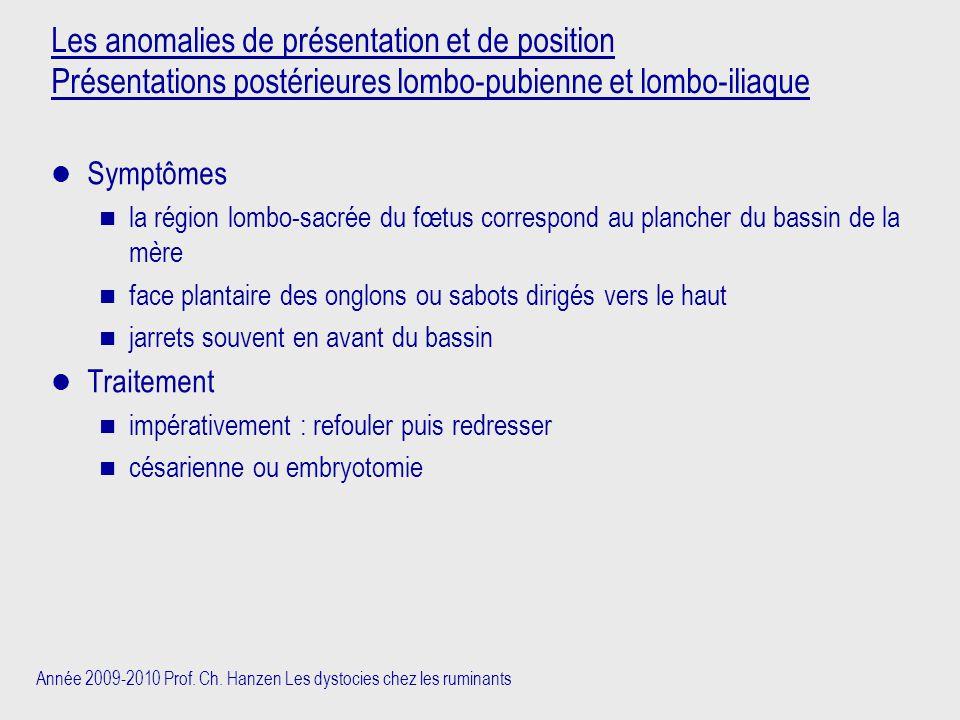 Les anomalies de présentation et de position Présentations postérieures lombo-pubienne et lombo-iliaque