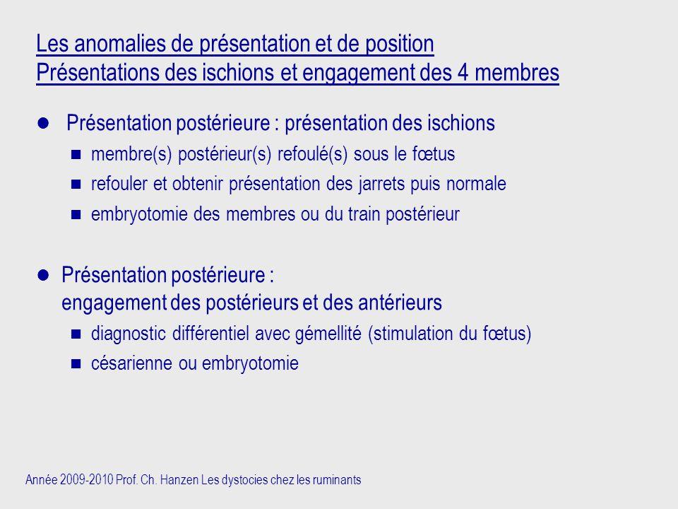 Les anomalies de présentation et de position Présentations des ischions et engagement des 4 membres