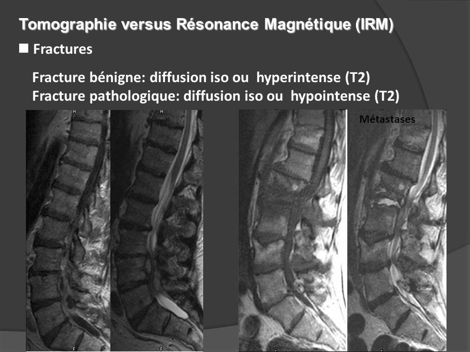 Tomographie versus Résonance Magnétique (IRM)