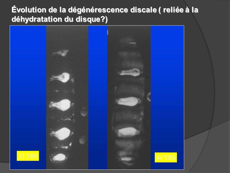 4/2/2017 Évolution de la dégénérescence discale ( reliée à la déhydratation du disque )