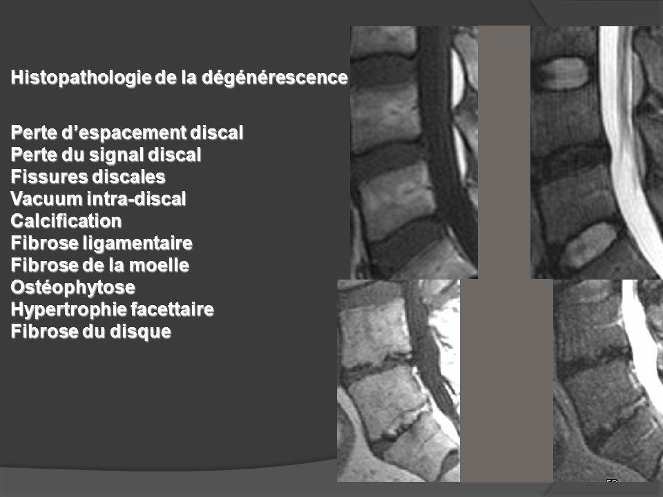Histopathologie de la dégénérescence